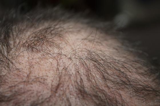 호르몬에 의한 탈모(안드로겐 탈모증. androgenetic alopecia)를 앓는 환자의 56.3%가 20~30대일 정도로 젊은 사람들의 숫자가 많다. [고대안산병원]