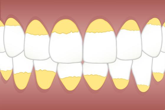 정기적으로 치과검진을 하고 스케일링을 하는 것은 치과 질환의 예방주사와도 같다. [사진 pixabay]