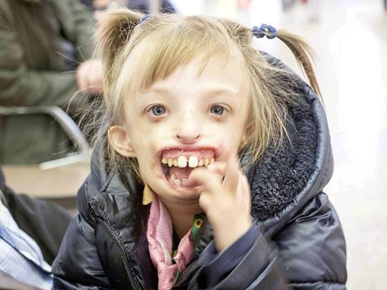 턱없이 태어난 안면기형 소녀 다리나는 영국 런던의 소아전문병원에서 아래턱 형성수술을 성공적으로 받은 뒤, 환한 표정과 웃음을 되찾았다. 러시아의 NPO단체 등 많은 이들이 다리나의 수술비용을 지원했다. [시베리안 타임스 캡처]