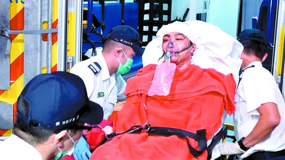 망치 테러 당한 홍콩시위 주도 인사