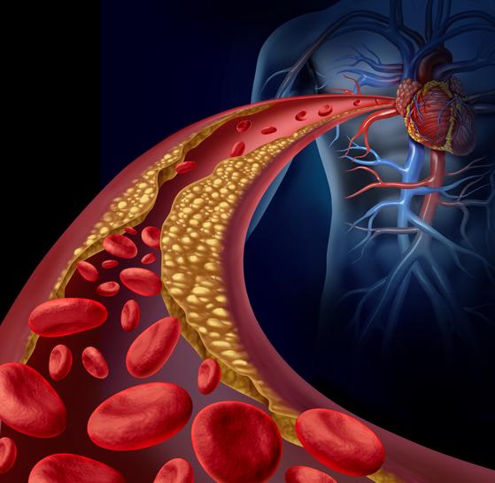 유해 콜레스테롤이 쌓이면서 좁아지고 있는 동맥. [사진 이미지투데이]