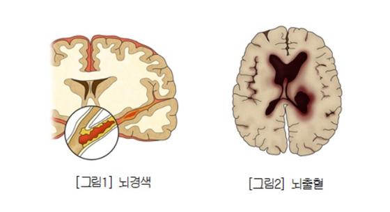 뇌경색과 뇌출혈. [서울아산병원]