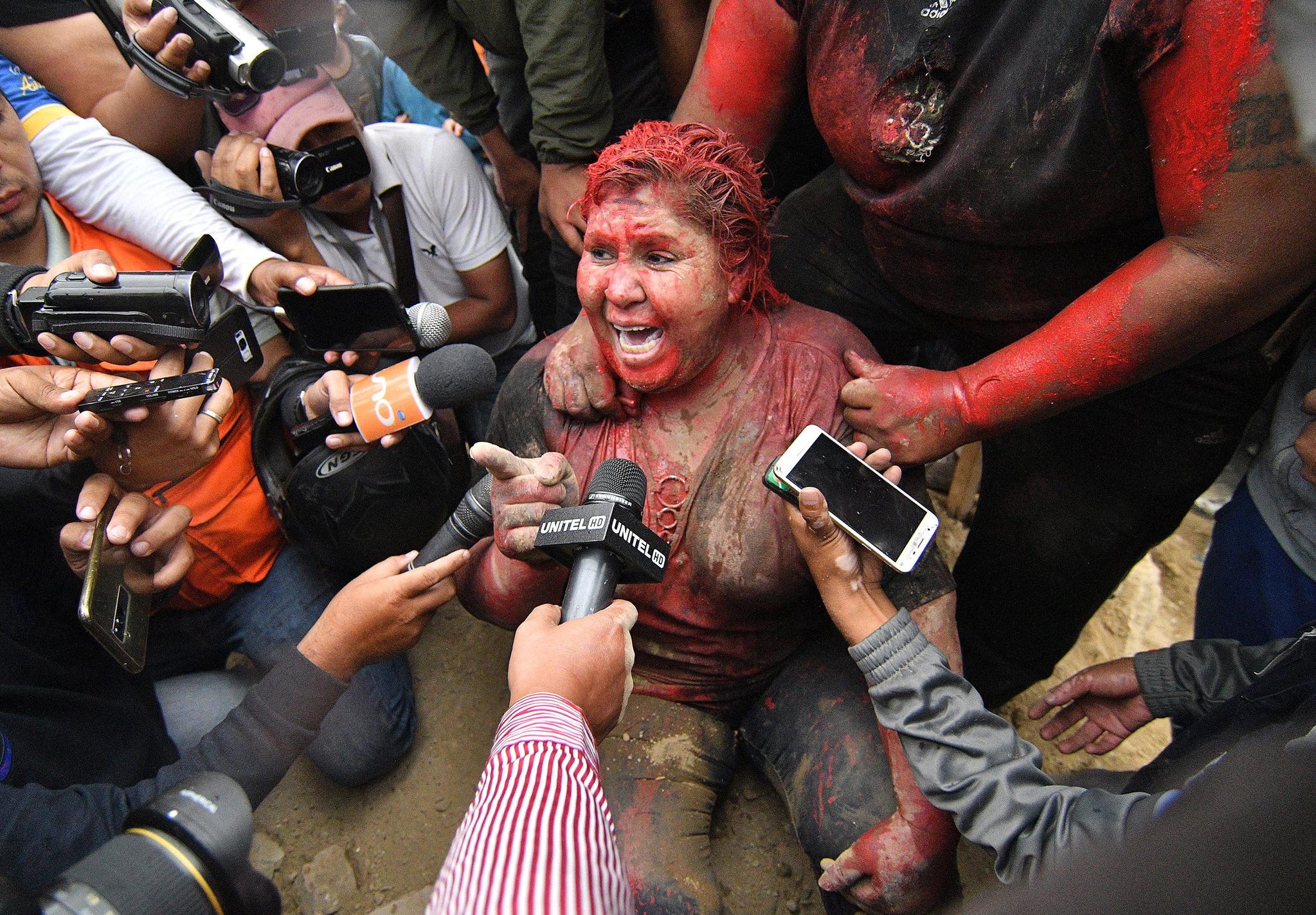 시위대의 공격을 받은 볼리비아 빈토의 아르체 시장이 취재진의 질문에 답하고 있다. [EPA=연합뉴스]