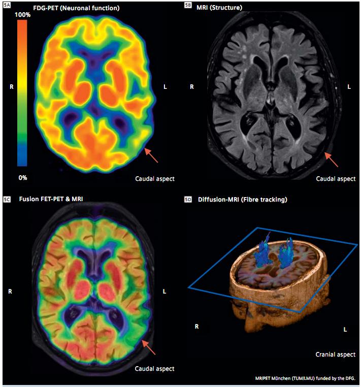 알츠하이머 환자의 뇌 촬영 사진. [중앙포토]