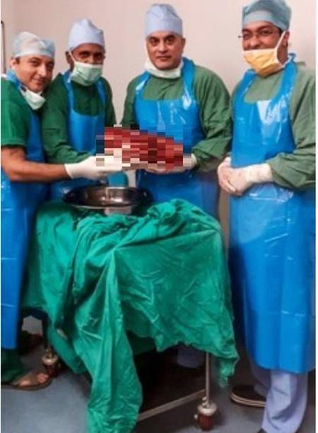 환자 몸에서 7.4㎏ '볼링공' 무게 콩팥 적출한 인도 병원. [AFP=연합뉴스]