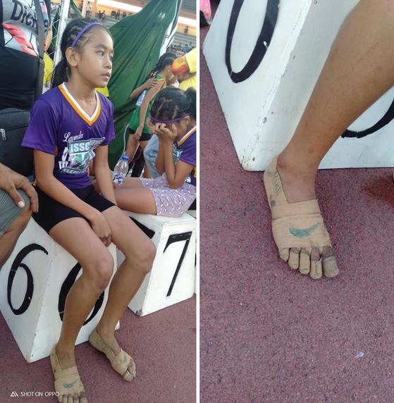 맨발에 붕대 감고 나이키 로고···금메달 3개 딴 11세 소녀