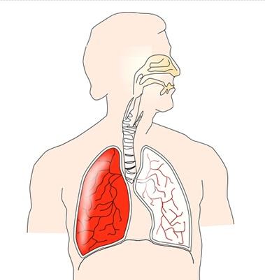 흡연, 대기오염, 화학물질 노출 등 여러 이유로 폐질환을 앓고 사망할 확률이 갈수록 높아지고 있다. [사진 pixabay]