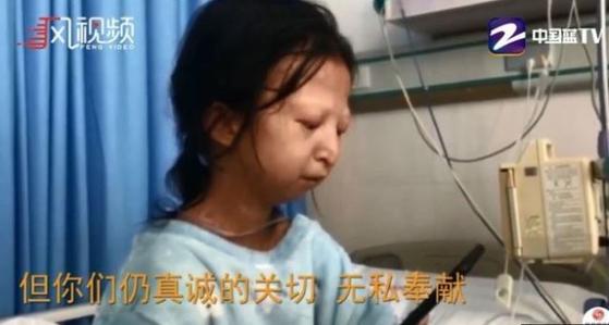 극빈 생활로 24세 나이에도 몸무게가 20kg에 불과했던 중국 여성 우화옌 사연이 지난해 10월 중국 TV방송을 통해 보도됐다. [뉴시스]