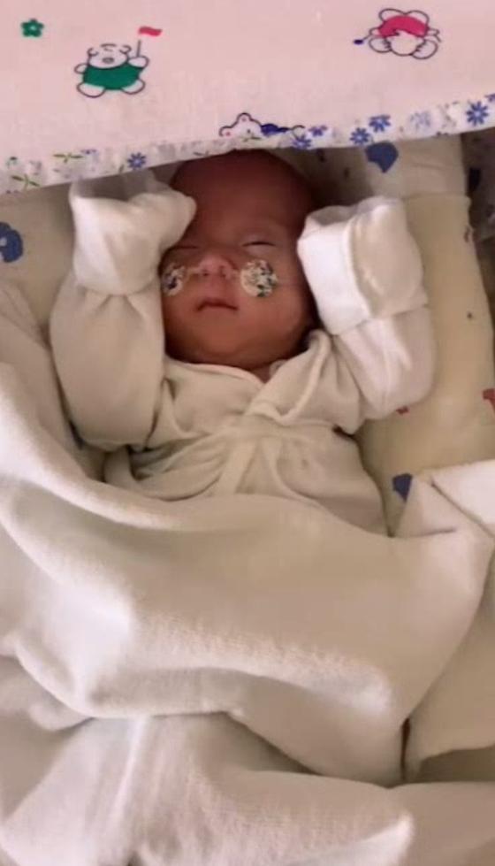 출생 후 147일된 소망이 모습. [사진 원주세브란스기독병원]