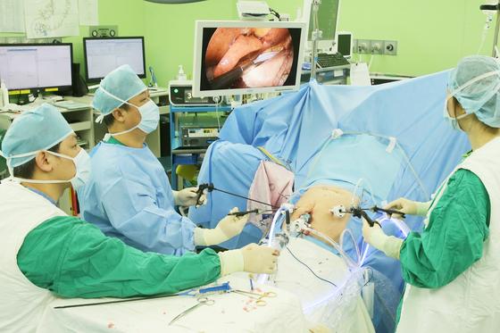 서울아산병원 위장관외과 김병식 교수(왼쪽에서 두 번째)가 복강경으로 위암 수술을 하고 있다.