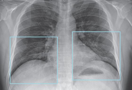 미국 첫 환자 신종코로나(입원 6일차, 증상 10일차) 환자 엑스레이 사진. 양쪽 폐 아래쪽이 정상보다 조금 더 하얗게 보이는 건 염증이 있을 가능성을 나타낸다. [자료 NEJM]