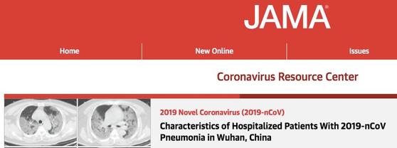 다른 질병으로 위장해 대량 감염 中연구팀 밝힌 코로나 특징