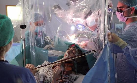 바이올린 연주가 다그마 터너가 지난달 31일(현지시간) 영국 런던 킹스칼리지병원에서 뇌종양 제거 수술을 받으며 바이올린을 연주하고 있다. [AFP=연합뉴스]