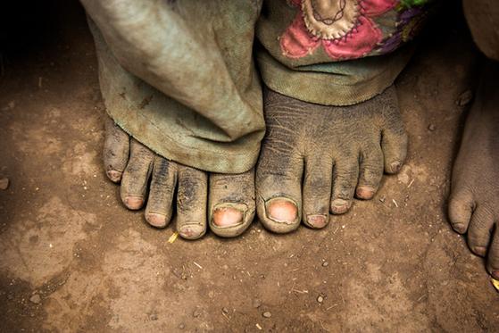 에티오피아 어린이의 맨발. [사진 허호]