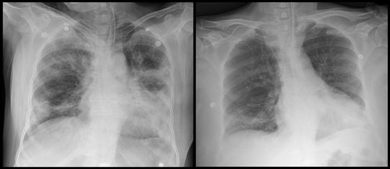 세브란스병원이 혈장치료로 완치한 환자 이모씨의 폐 사진. 김씨가 혈장치료를 받기 전(좌)과 후(우)의 흉부 X-ray 영상. [사진 세브란스병원]