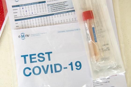 신종 코로나바이러스 감염증 진단을 위해 추출한 검체. EPA=연합뉴스