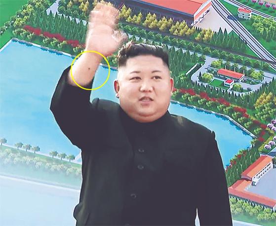 NK뉴스는 2일 공개된 김정은 위원장의 동영상에서 보이는 손목의 까만 점(노란 선)이 심혈관계 시술 흔적일 수 있다고 보도했다. [뉴시스]