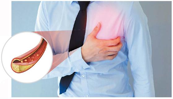 혈관 벽이 좁아지고 막히는 죽상동맥경화증을 예방하려면 나쁜 콜레스테롤은 줄이고 좋은 콜레스테롤은 늘리는 관리 전략이 필요하다.