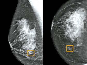구글의 인공지능은 인간이 발견하지 못한 유방암 조직(네모)을 찾아냈다. 폐암 진단 실력 역시 인간과 비슷한 수준에 이르렀다. [로이터=연합]