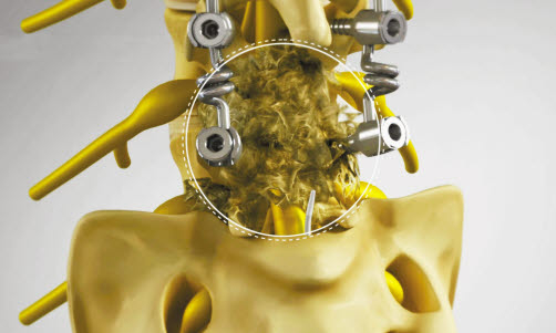 수술성 유착으로 인해 통증이 심해지고 악화된 경우에도 추간공확장술을 적용해 통증을 치료한 성공 사례가 많다. [사진 서울 광혜병원]
