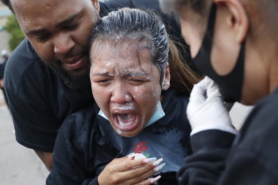 31일(현지시간) 미국 미네소타주 미니애폴리스에서 열린 시위 도중 한 참가자가 후추 스프레이를 맞은 뒤 고통을 호소하고 있다. AP=연합뉴스
