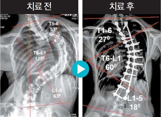 흉추가 C자형으로 125도가량 휜 16세 환자의 척추고정술 치료 전후 사진.