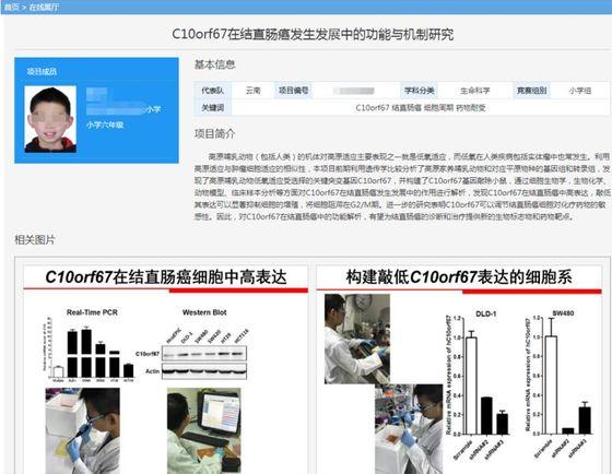 대장암 논문 저자가 초등 6학년…중국판 부모찬스 논란