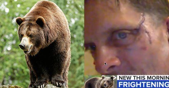 아빠는 강했다…한밤 중 부엌서 흑곰 싸워 이긴 美 50대 남성