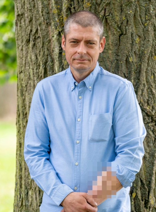 영국에 사는 맬컴 맥도널드는 2014년 패혈증으로 성기를 잃었다. 의료진은 맬도널드의 왼쪽 팔뚝에서 성기를 배양했고, 오는 연말 이식수술을 할 예정이다. [더선 캡처]