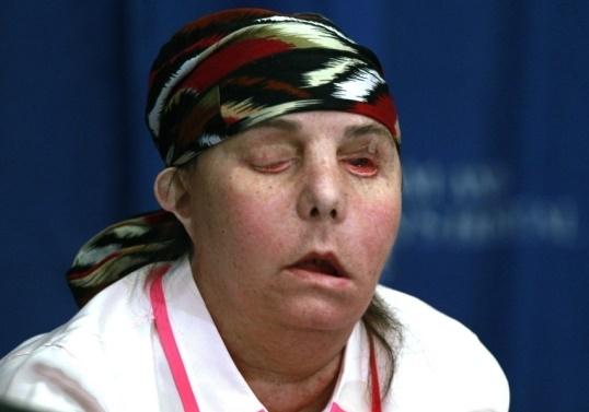 가정폭력에 얼굴잃은 미국 여성 카먼 블렌딘 탈러튼의 2013년 1차 수술 직후 모습. AP=연합뉴스