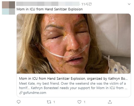 미 텍사스주 라인드록에 살고 있는 케이트 와이즈는 지난달 30일(현지시각) 손 소독제를 바른 뒤 손으로 촛불을 켰다가 온몸에 3도 화상을 입었다. [사진 트위터 캡처]