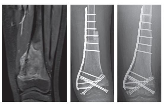 수술 이전 환자의 MRI 사진(왼쪽)에서 종양이 발생했음을 확인할 수 있다. 수술 직후(가운데)와 수술 후 4년 이후(오른쪽) 환자의 단순방사선사진. 종양을 제거한 부위는 골이식을 통해 개건했다. 해당 환자의 무릎관절 운동은 완벽하게 정상수준까지 회복됐다. [사진 서울대병원]