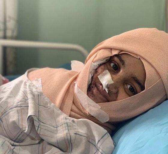 네팔의 한 소녀가 10대 소년을 거절했다는 이유로 괴롭힘을 당하다가 염산 테러 공격으로 얼굴에 큰 상처를 입었다. 이 사건으로 여론이 들끓자 법 개정이 추진됐다. [트위터]
