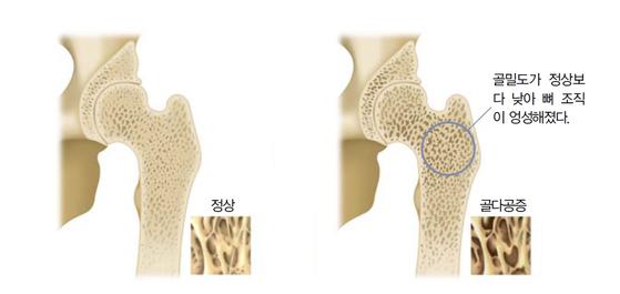 매년 비타민D 결핍 관련 환자가 증가하는 가운데 올해는 신종 코로나바이러스 감염증(코로나19)으로 야외활동을 피하는 사람 늘어 국민 뼈 건강이 더욱 위험할 것이라는 예측이 나온다. 사진은 골다공증에 걸린 뼈. 제공 자생한방병원