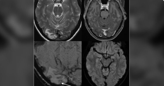 뇌에서 기생충이 발견된 호주의 25세 여성 A씨의 MRI 사진. [트위터 캡처]