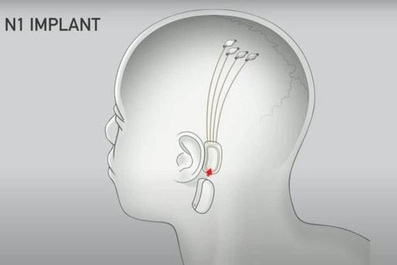 뉴럴링크의 뇌 임플란트 (출처: 뉴럴링크)