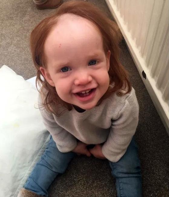 아빠가 사용하는 제모 크림을 자신의 머리에 발라 머리카락이 빠진 영국 어린이 메이시 사워드. 그래도 밝게 웃는 모습이 너무 귀엽다. [트위터 캡처]