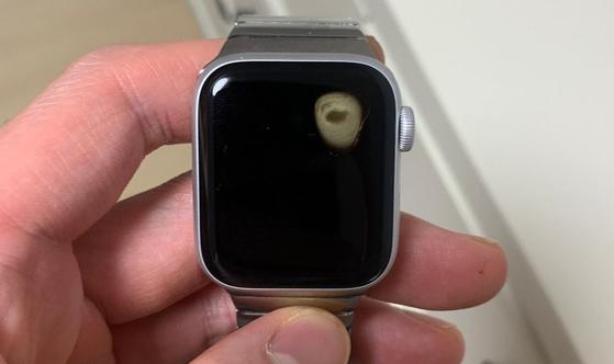 시계 찼더니 손목 벌게져 애플워치 신작 美서도 과열 사고