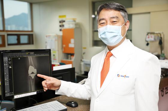 이광원 강북 힘산 병원 원장은 인공 관절의 X-ray를 검사 해 설명했다.  사진인가