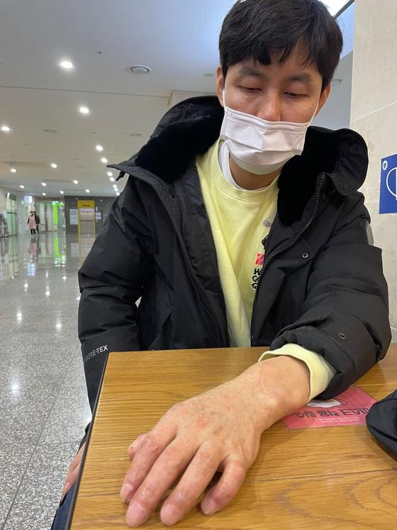 국내 최초로 다른 사람의 팔을 이식받은 손진욱씨가 이식받은 팔을 보이며 설명하고 있다. 김윤호 기자