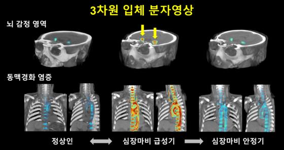 3차원 입체 분자영상으로 보면 대뇌 감정활성도는 심근경색의 중증도가 높을수록 뚜렷하게 증가하고, 심근경색이 회복됨에 따라 함께 감소했다. 제공 고려대구로병원