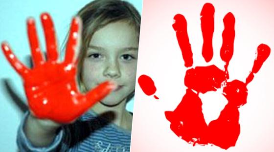 소년병 징집에 반대한다는 표시로 붉은 색을 칠한 손바닥을 내보이고 있다. [사진 국제인권감시기구]