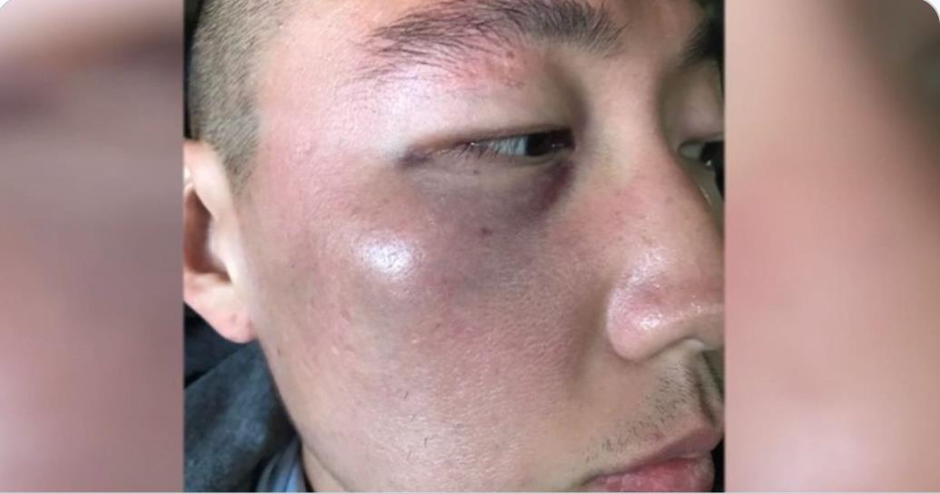 인종차별적 발언과 함께 무차별적 폭행을 당한 한국계 데니 김. 사진 트위터 게시물 캡처