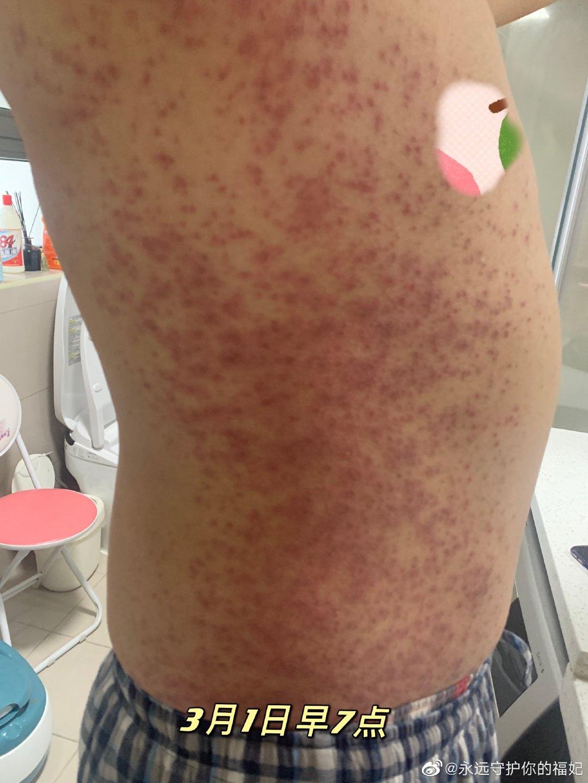 지난 1일 중국 SNS에 올라온 시노팜 백신 접종자의 온몸에 퍼진 붉은 반점 사진. [웨이보 캡처]