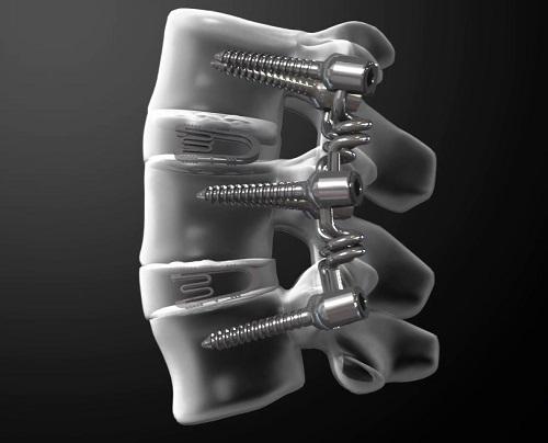 척추 수술 예시도 : 척추 전방부 디스크 자리에는 bio-functional cage, 척추 후방부에는 bioflex가 삽입