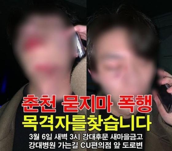 춘천경찰서 등에 따르면 지난 6일 강원 춘천시의 한 대학가에서 20대 남성이 '묻지 마 폭행'을 당했다는 신고가 접수됐다. 사진 페이스북 페이지 '페북춘천'