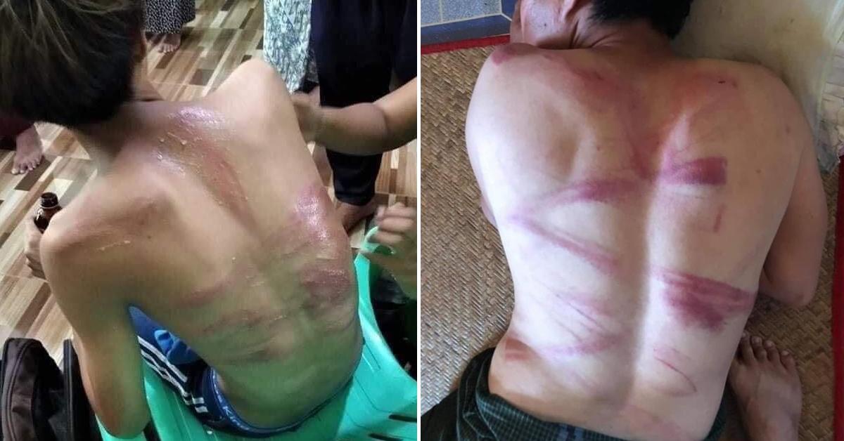 체포됐다 풀려난 15세 소년(왼쪽)의 모습. 미얀마 군경에 체포됐다 풀려난 남성들의 등에 시뻘건 상처가 나 있다. 트위터 캡처