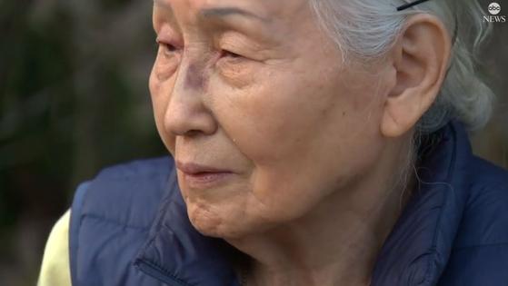 미국 뉴욕 길거리에서 얼굴을 폭행당한 83세 한국계 미국인 낸시 도씨가 ABC방송과 인터뷰하고 있다. 사진 ABC홈페이지