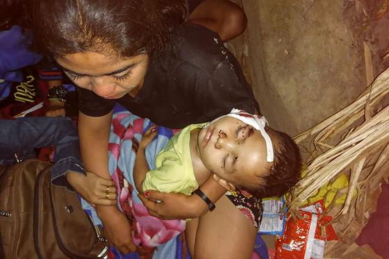 지난달 1일 미얀마 군부의 쿠데타가 일어난 이래 현재까지 500명이 넘는 사망자가 발생하는 등 유혈사태가 잇따르고 있다. 지난 29일 미얀마에서 부상당한 아이를 안고 있는 시민의 모습 [AFP=연합뉴스]
