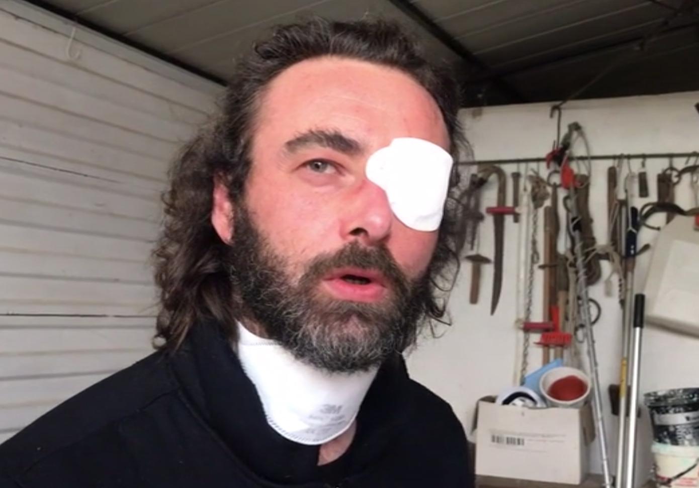 최근 며칠 사이 너무 많이 울어 염증이 생긴 왼쪽 눈에 안대를 착용한 리카르도 체코벨리 전 신부. ANSA 통신